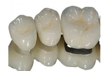 Материалы зуботехнические