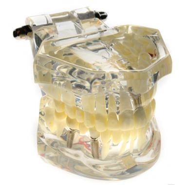 Модель демонстрационная со сьемными имплантами, мостами