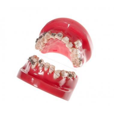 Модель демонстрационная обучающая ортодонтическая с керамическими брекетами