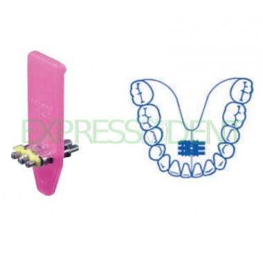 Винт ортодонтический универсальный на верхнюю/нижнюю челюсть А0800-10