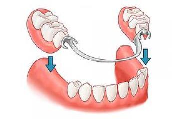 Ортопедические материалы