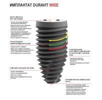 Имплантаты Duravit Wide 5,5*10