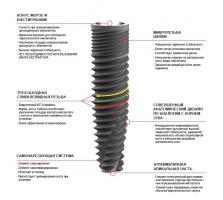 Имплантаты Duravit Evolution EV 4,0*14